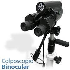 colposcopio